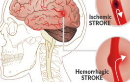 STROKE – CAUSES, SYMPTOMS AND PREVENTIVE METHODS