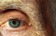 How Vision Gets Affected by Parkinson's Disease